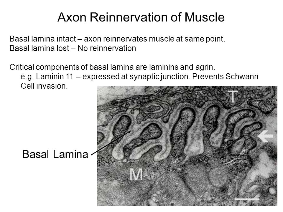 Axon Reinnervation of Muscle Basal Lamina Basal lamina intact – axon reinnervates muscle at same point.