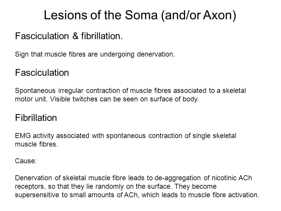 Fasciculation & fibrillation. Sign that muscle fibres are undergoing denervation. Fasciculation Spontaneous irregular contraction of muscle fibres ass