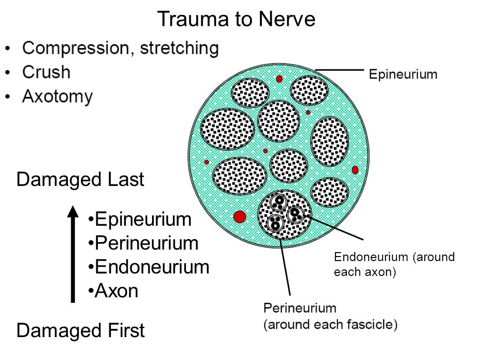 Trauma to Nerve Damaged Last Epineurium Perineurium Endoneurium Axon Damaged First Endoneurium (around each axon)