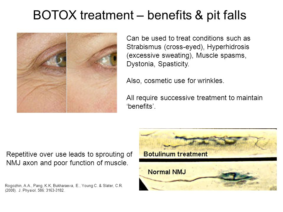 BOTOX treatment – benefits & pit falls Can be used to treat conditions such as Strabismus (cross-eyed), Hyperhidrosis (excessive sweating), Muscle spa