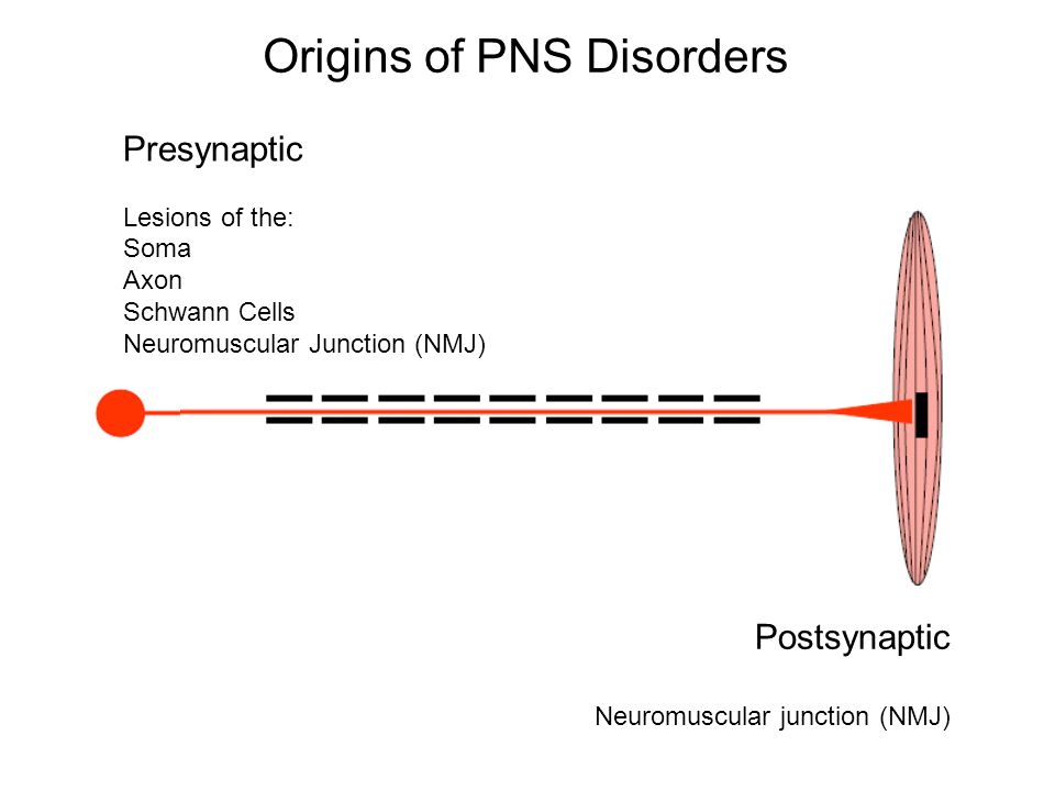 Origins of PNS Disorders Presynaptic Lesions of the: Soma Axon Schwann Cells Neuromuscular Junction (NMJ) Postsynaptic Neuromuscular junction (NMJ)