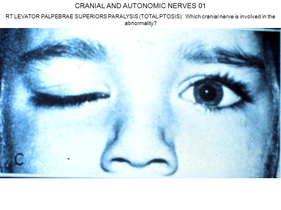 CRANIAL AND AUTONOMIC NERVES 01 RT LEVATOR PALPEBRAE SUPERIORS PARALYSIS (TOTAL PTOSIS): Which cranial nerve is involved in the abnormality