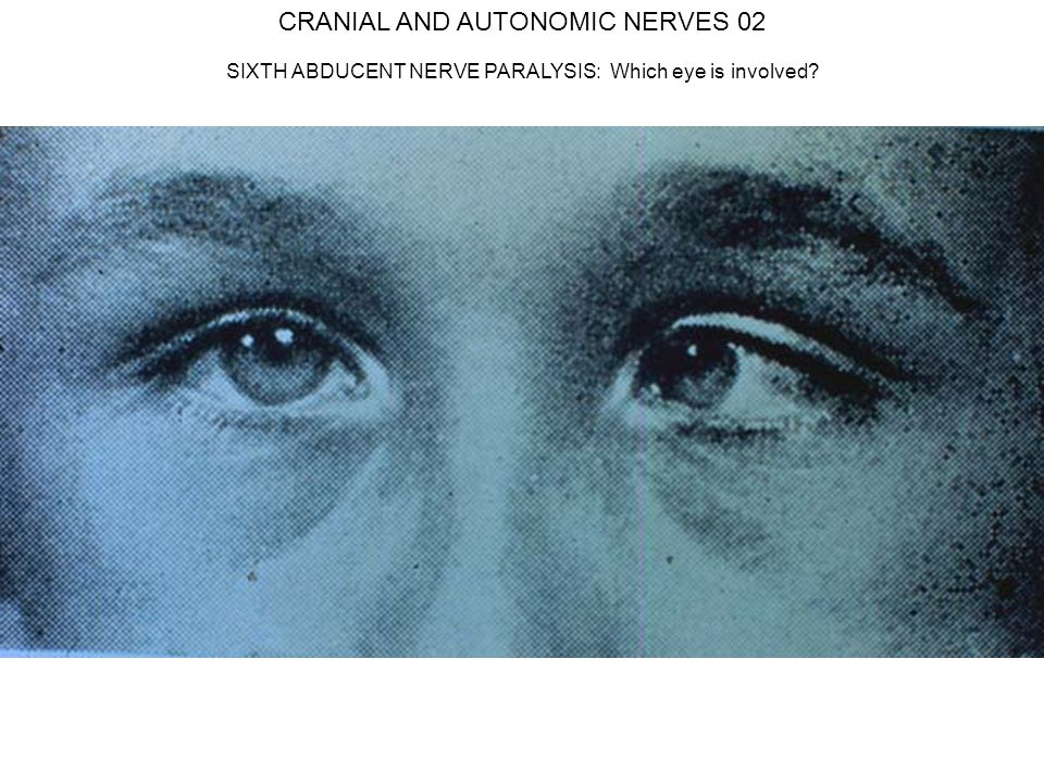 CRANIAL AND AUTONOMIC NERVES 02 SIXTH ABDUCENT NERVE PARALYSIS: Which eye is involved?