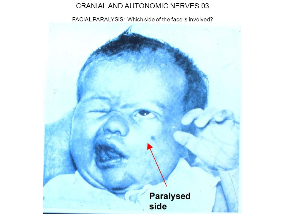 CRANIAL AND AUTONOMIC NERVES 03 FACIAL PARALYSIS: Which side of the face is involved