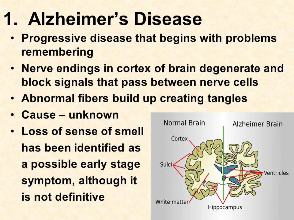 1. Alzheimer's Disease Progressive disease that begins with problems remembering Nerve endings in cortex of brain degenerate and block signals that pa