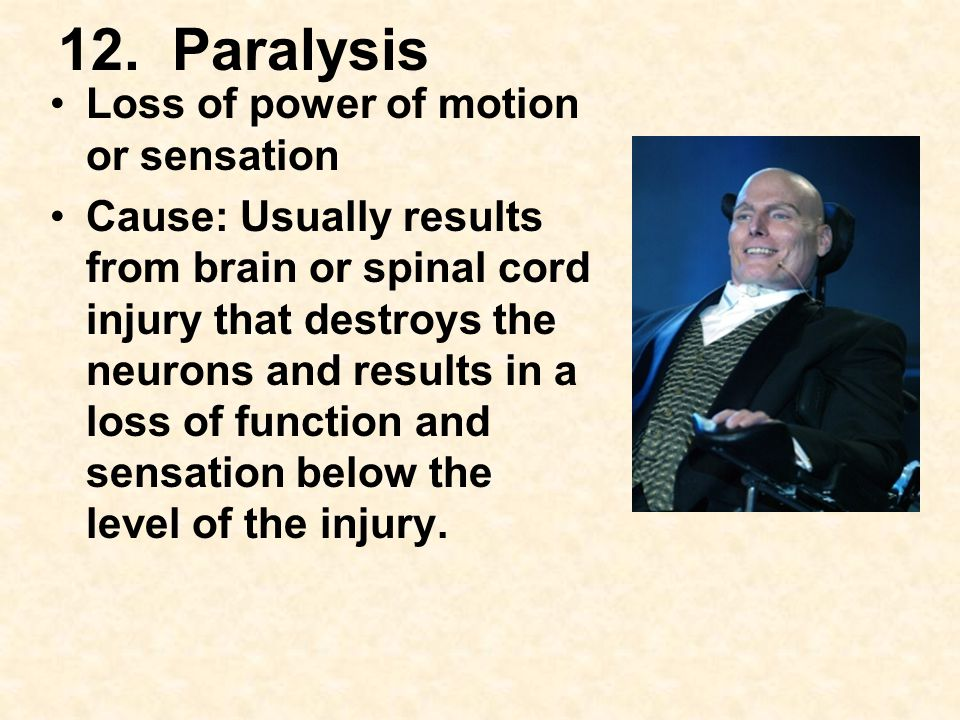 12. Paralysis Loss of power of motion or sensation Cause: Usually results from brain or spinal cord injury that destroys the neurons and results in a