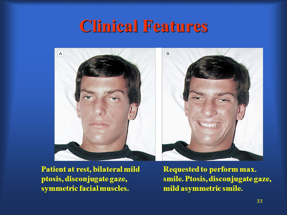 33 Clinical Features Requested to perform max. smile.