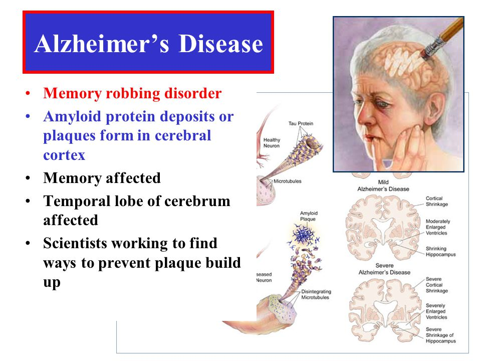 Alzheimer's Disease Memory robbing disorder Amyloid protein deposits or plaques form in cerebral cortex Memory affected Temporal lobe of cerebrum affected Scientists working to find ways to prevent plaque build up