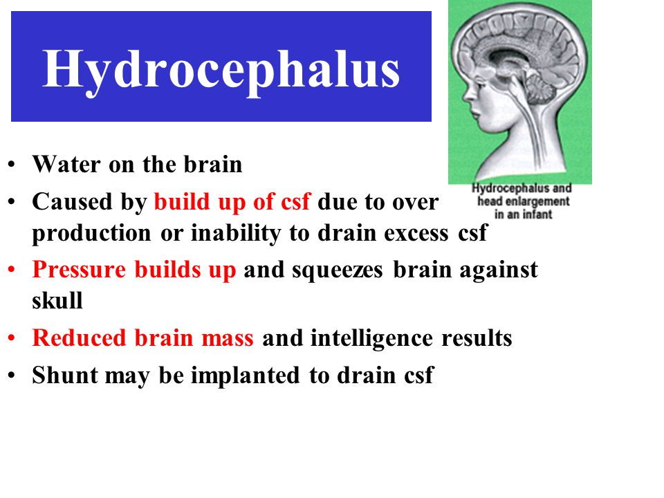 Hydrocephalus Water on the brain Caused by build up of csf due to over production or inability to drain excess csf Pressure builds up and squeezes brain against skull Reduced brain mass and intelligence results Shunt may be implanted to drain csf