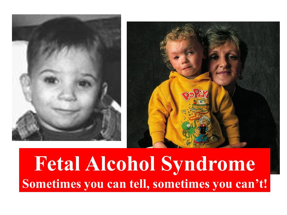 Fetal Alcohol Syndrome Sometimes you can tell, sometimes you can't!