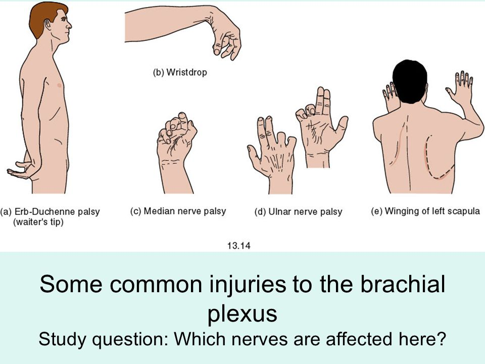 Some common injuries to the brachial plexus Study question: Which nerves are affected here?