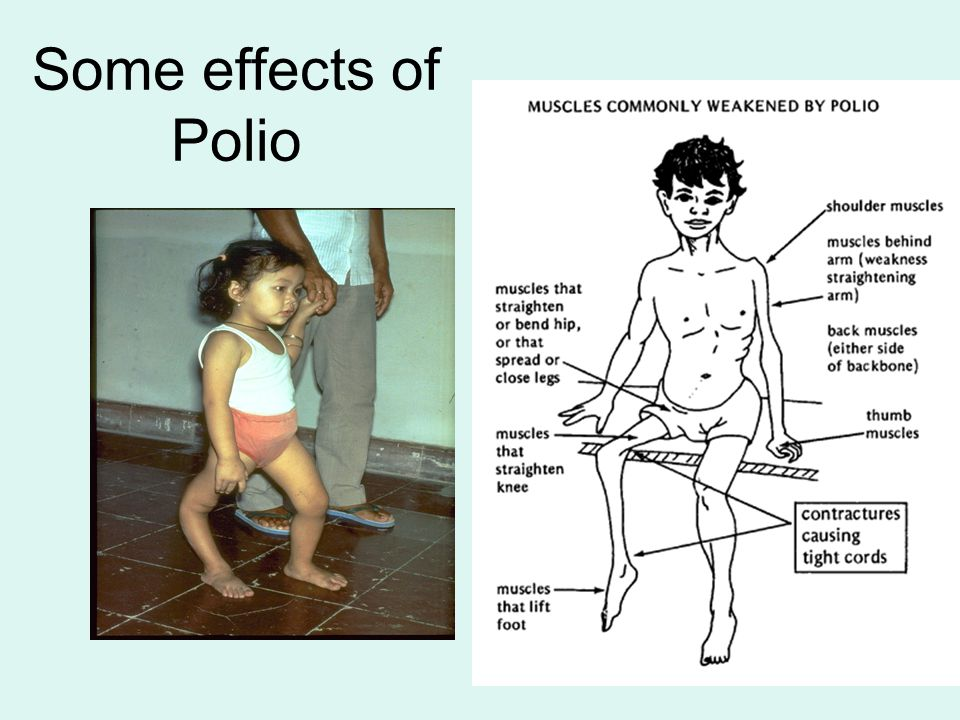Some effects of Polio
