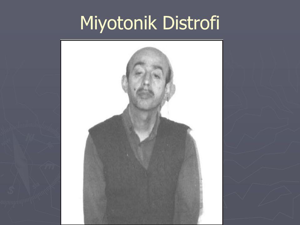 Miyotonik Distrofi