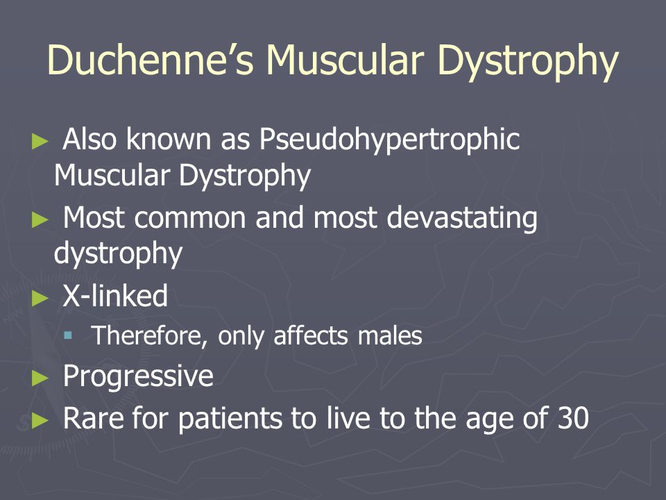 Duchenne's Muscular Dystrophy ► ► Also known as Pseudohypertrophic Muscular Dystrophy ► ► Most common and most devastating dystrophy ► ► X-linked   Therefore, only affects males ► ► Progressive ► ► Rare for patients to live to the age of 30