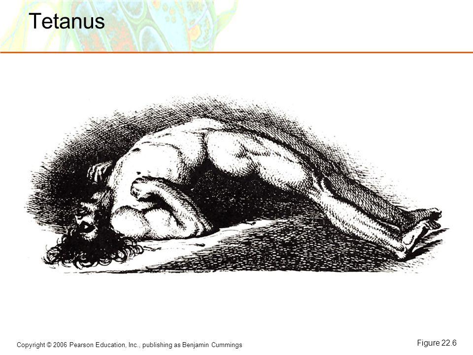 Copyright © 2006 Pearson Education, Inc., publishing as Benjamin Cummings Tetanus Figure 22.6