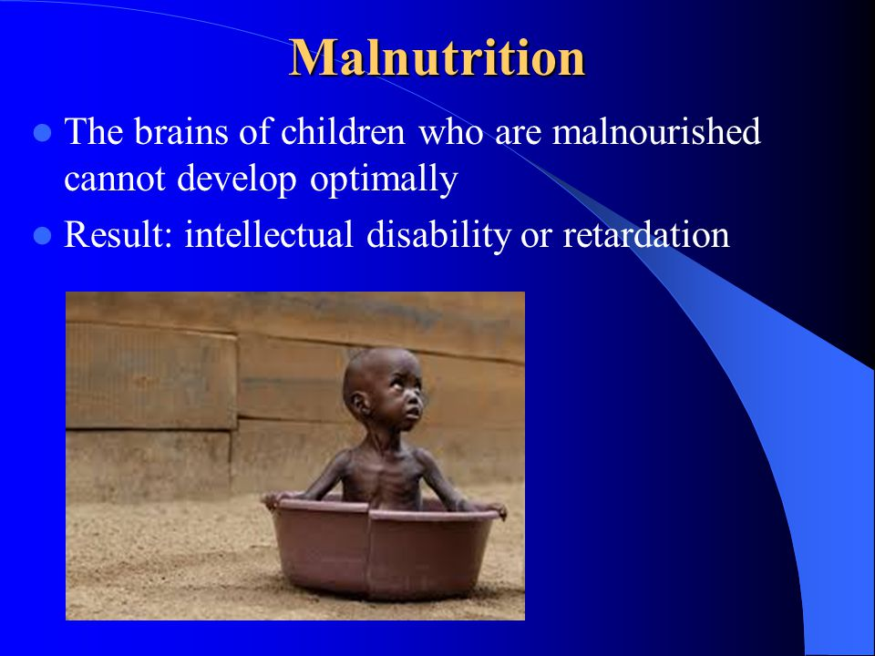 Malnutrition The brains of children who are malnourished cannot develop optimally Result: intellectual disability or retardation