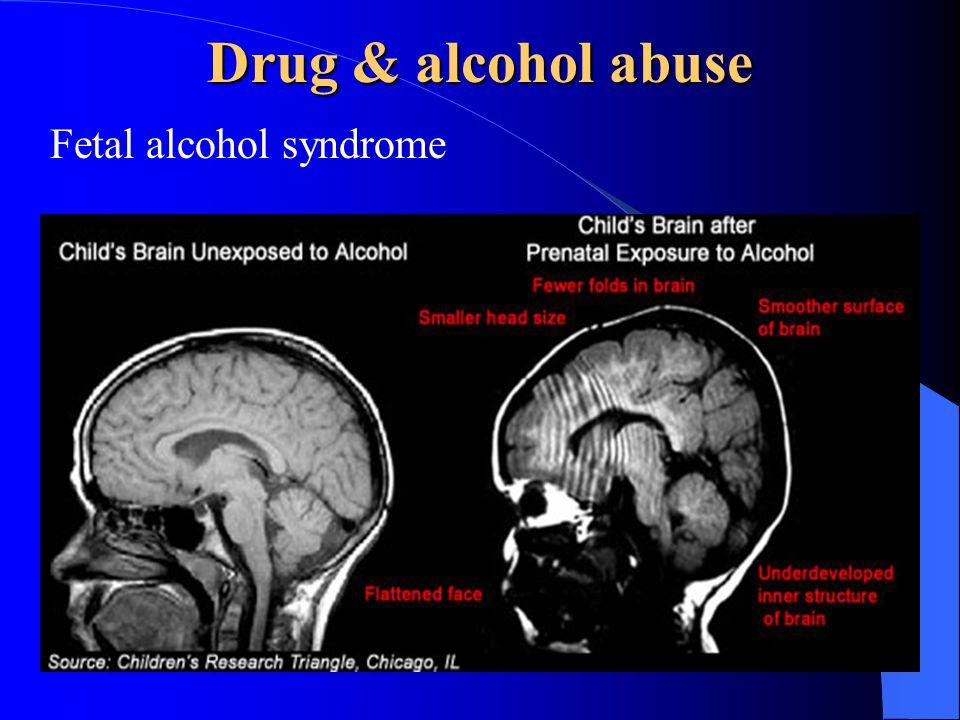 Drug & alcohol abuse Fetal alcohol syndrome