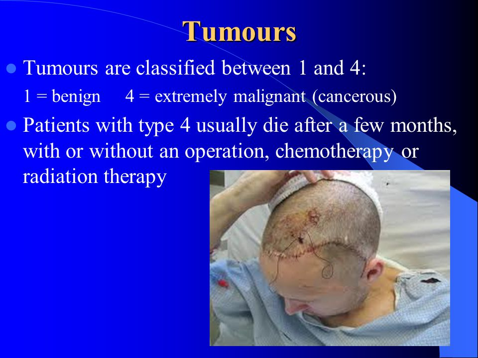 Tumours Tumours are classified between 1 and 4: 1 = benign 4 = extremely malignant (cancerous) Patients with type 4 usually die after a few months, wi