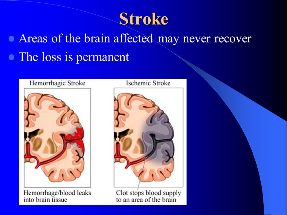 Stroke Areas of the brain affected may never recover The loss is permanent