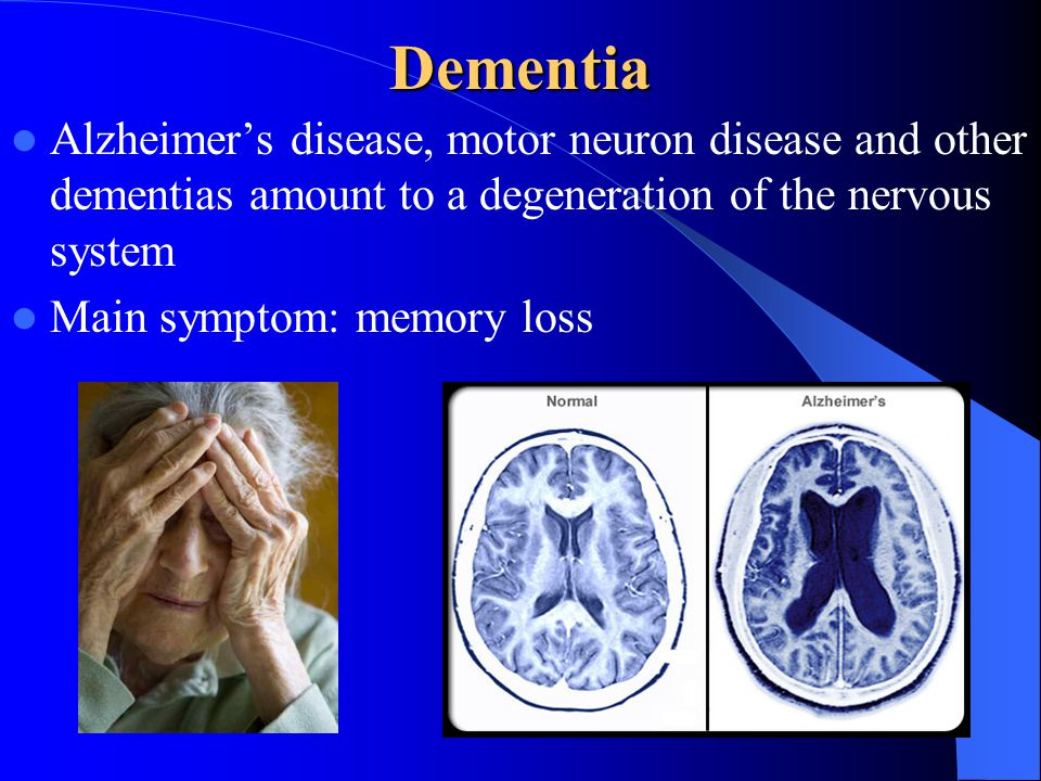Dementia Alzheimer's disease, motor neuron disease and other dementias amount to a degeneration of the nervous system Main symptom: memory loss