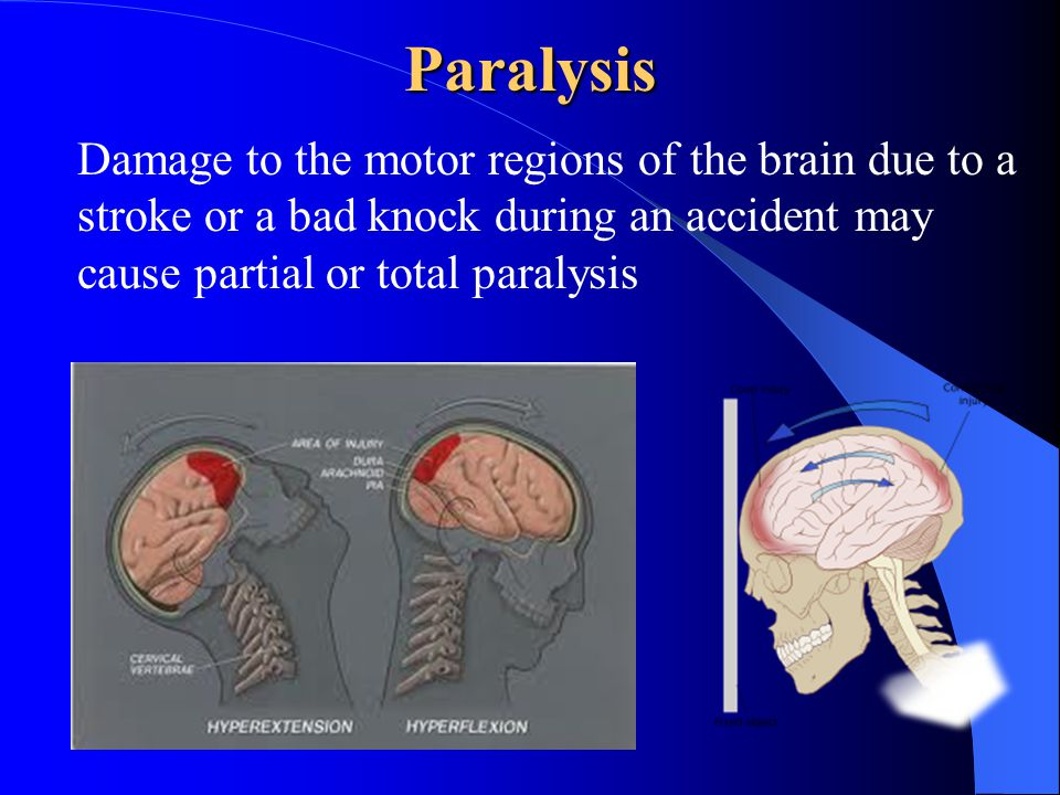 Paralysis Damage to the motor regions of the brain due to a stroke or a bad knock during an accident may cause partial or total paralysis
