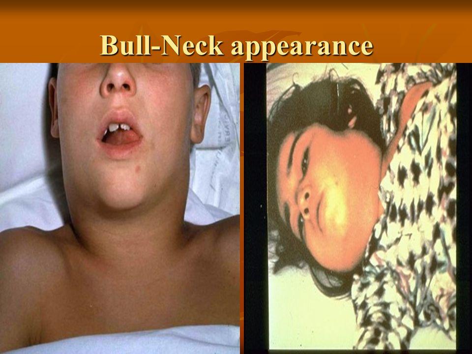 Bull-Neck appearance