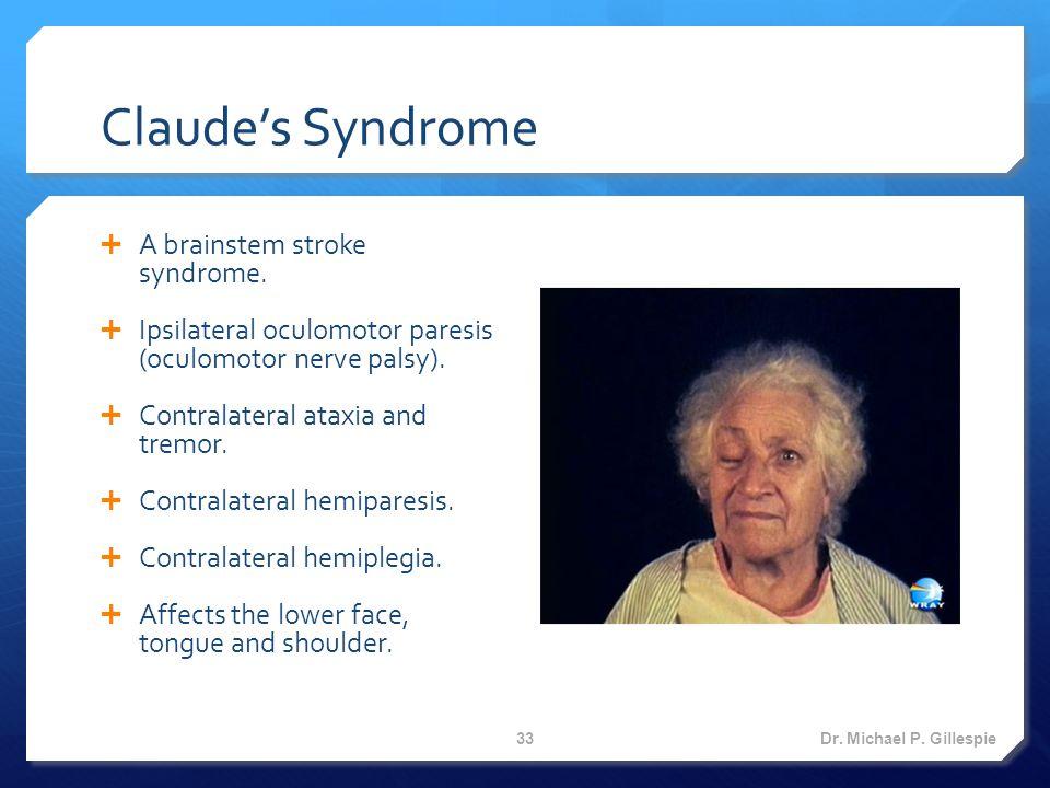 Claude's Syndrome  A brainstem stroke syndrome.