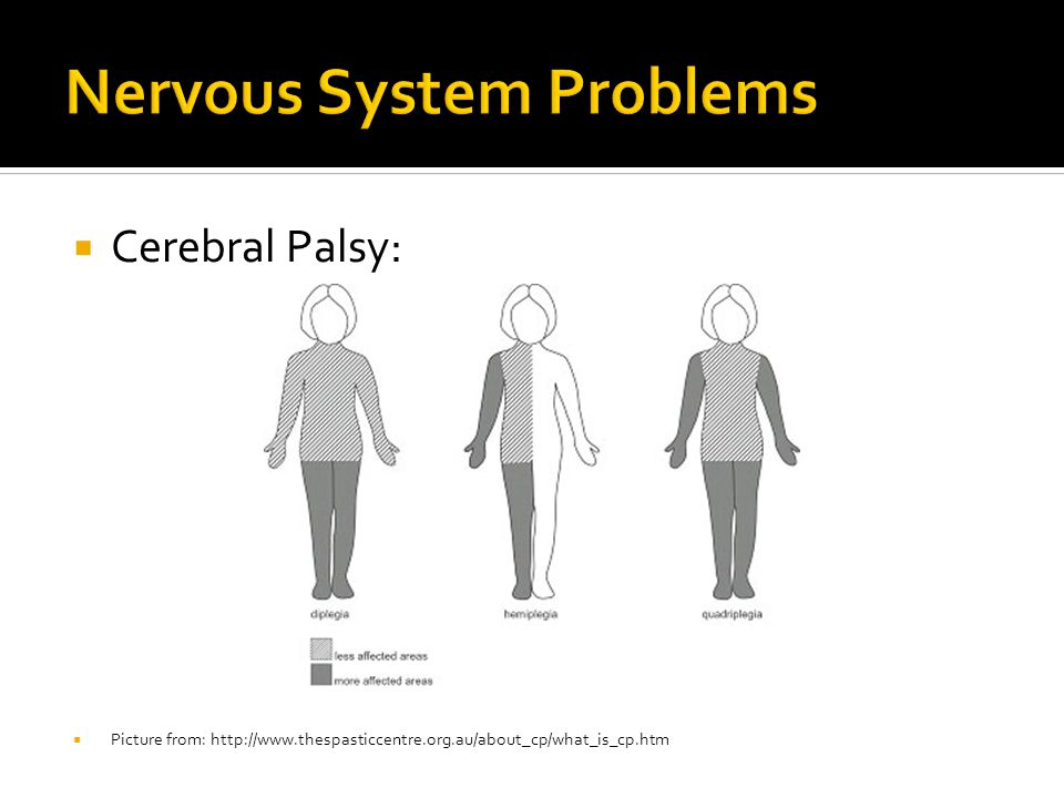  Cerebral Palsy:  Picture from: http://www.thespasticcentre.org.au/about_cp/what_is_cp.htm