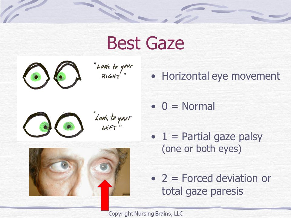 Best Gaze Horizontal eye movement 0 = Normal 1 = Partial gaze palsy (one or both eyes) 2 = Forced deviation or total gaze paresis Copyright Nursing Brains, LLC