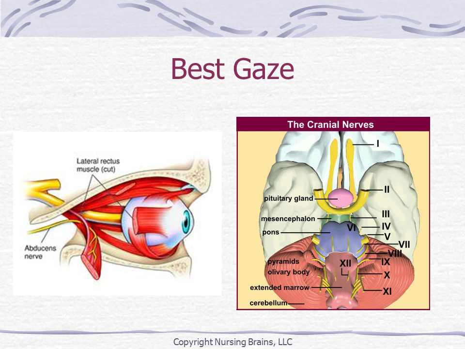 Best Gaze Copyright Nursing Brains, LLC