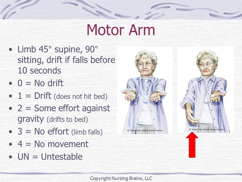 Motor Arm Limb 45° supine, 90° sitting, drift if falls before 10 seconds 0 = No drift 1 = Drift (does not hit bed) 2 = Some effort against gravity (dr