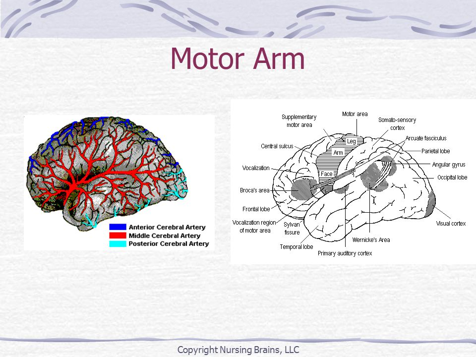 Motor Arm Copyright Nursing Brains, LLC