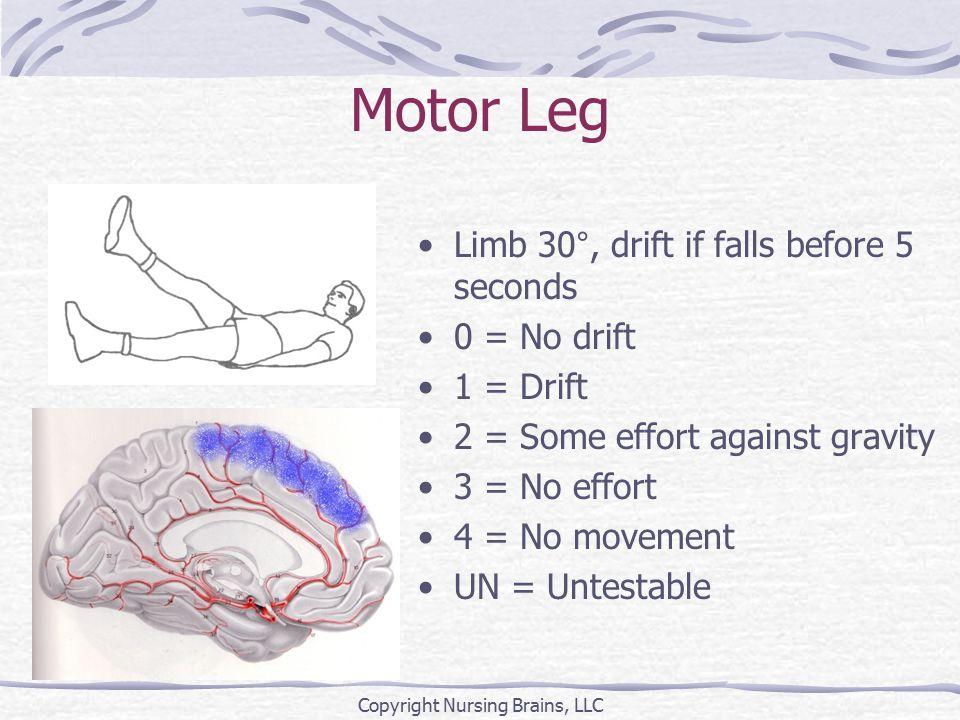 Motor Leg Limb 30°, drift if falls before 5 seconds 0 = No drift 1 = Drift 2 = Some effort against gravity 3 = No effort 4 = No movement UN = Untestable Copyright Nursing Brains, LLC
