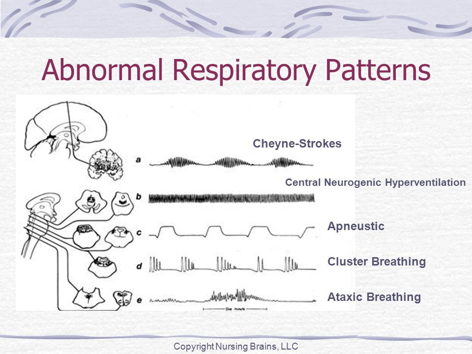 Abnormal Respiratory Patterns Copyright Nursing Brains, LLC Cheyne-Strokes Central Neurogenic Hyperventilation Apneustic Cluster Breathing Ataxic Breathing
