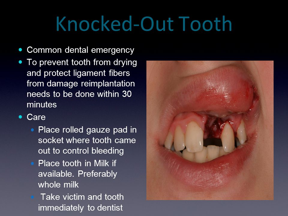 Knocked-Out Tooth Common dental emergency To prevent tooth from drying and protect ligament fibers from damage reimplantation needs to be done within