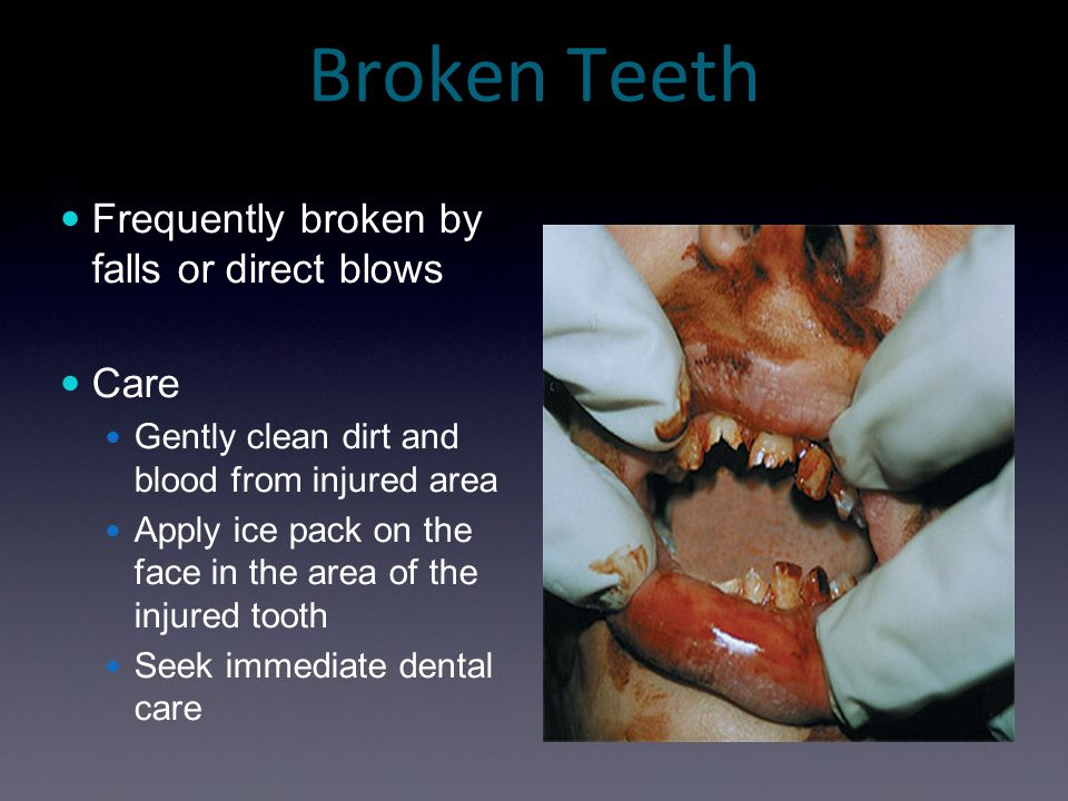 Broken Teeth Frequently broken by falls or direct blows Care Gently clean dirt and blood from injured area Apply ice pack on the face in the area of t