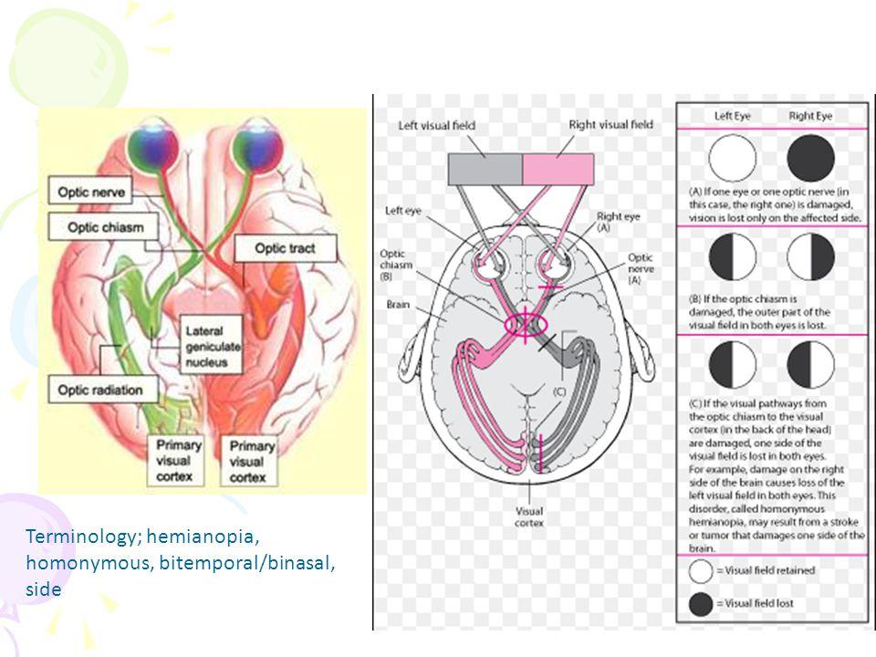 Terminology; hemianopia, homonymous, bitemporal/binasal, side
