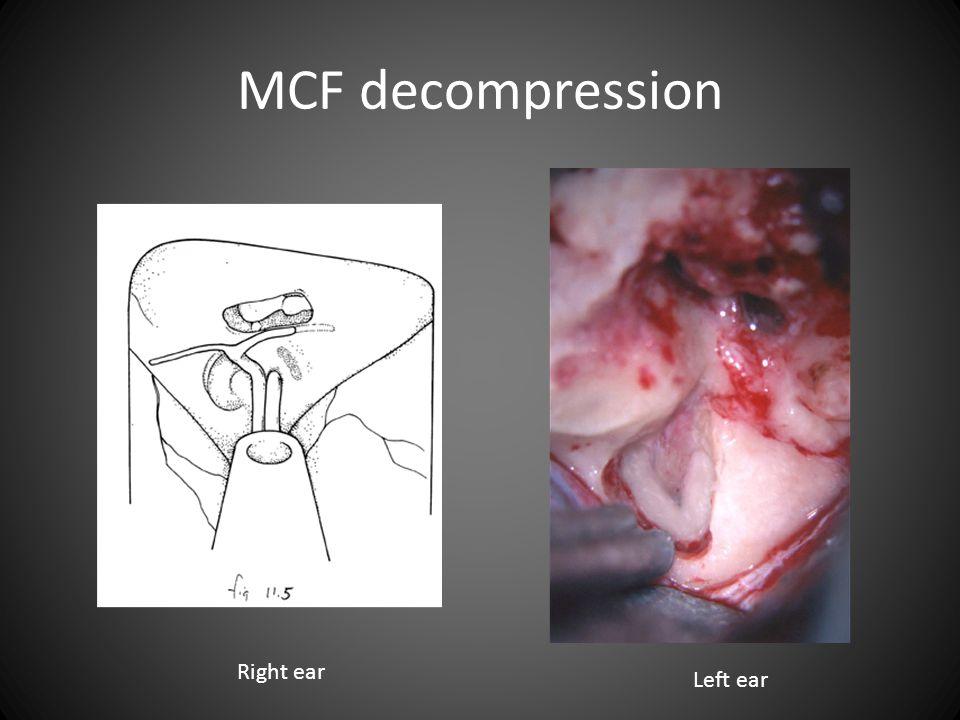 MCF decompression Right ear Left ear