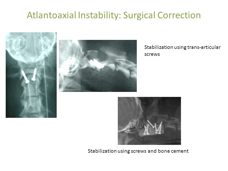 Atlantoaxial Instability: Surgical Correction Stabilization using screws and bone cement Stabilization using trans-articular screws