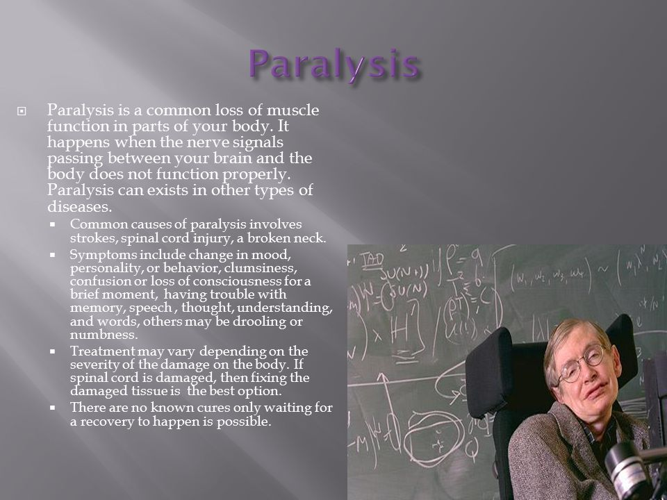  Paralysis is a common loss of muscle function in parts of your body.