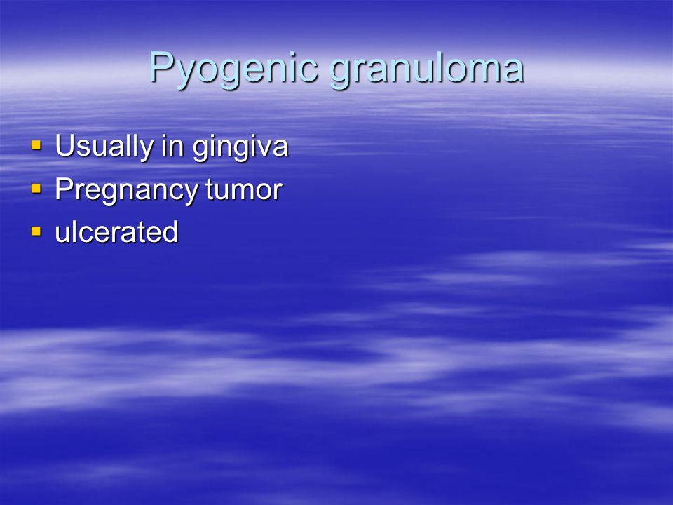 Pyogenic granuloma  Usually in gingiva  Pregnancy tumor  ulcerated