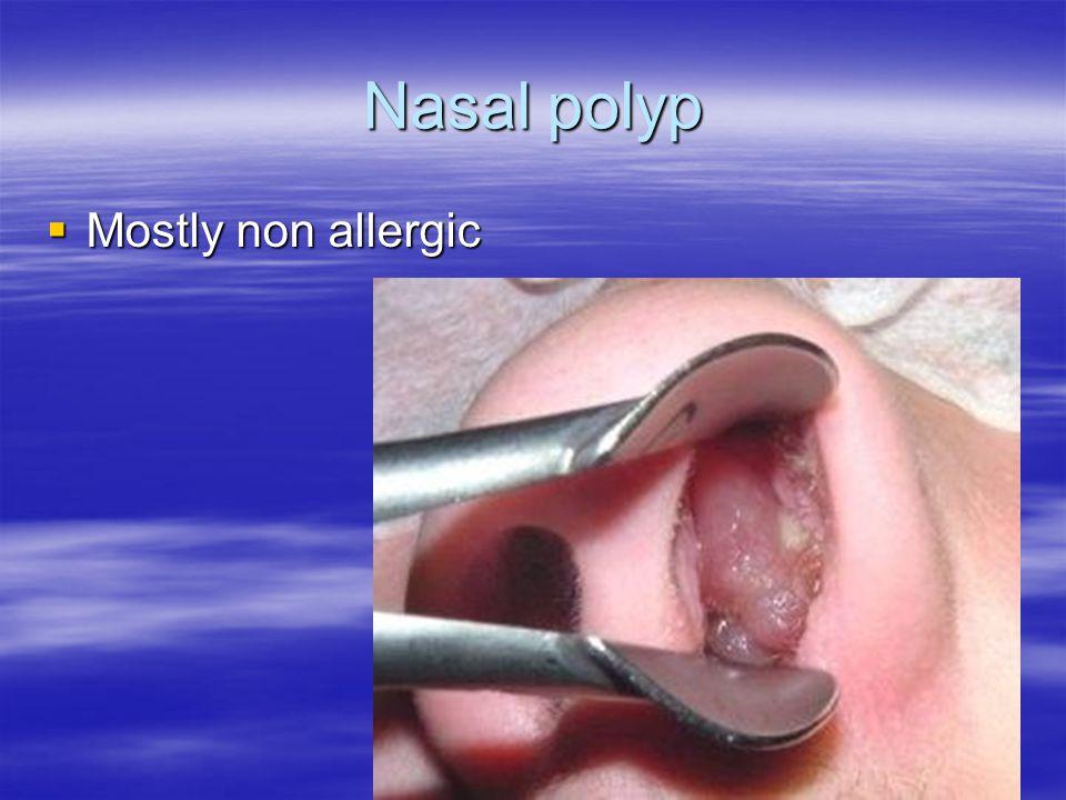 Nasal polyp  Mostly non allergic