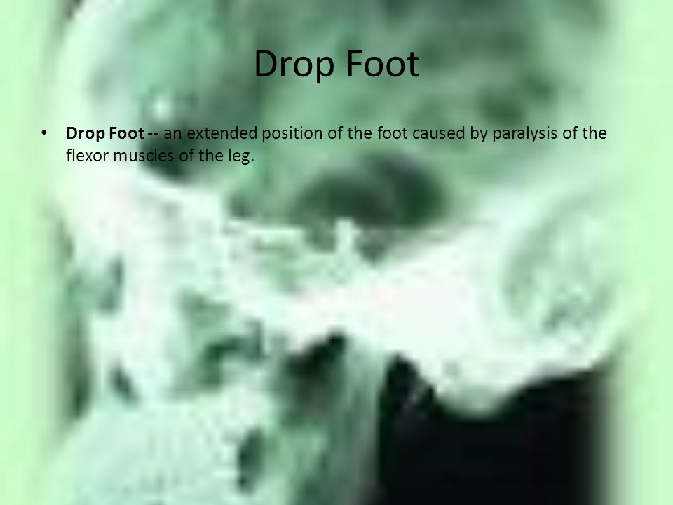 Drop Foot Drop Foot -- an extended position of the foot caused by paralysis of the flexor muscles of the leg.