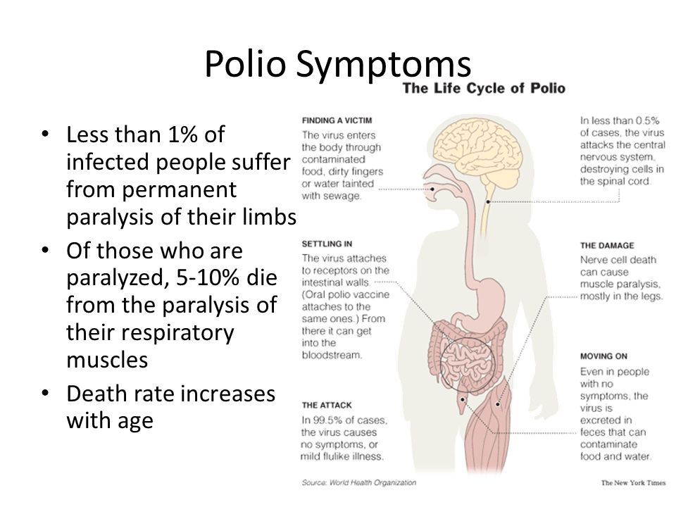 Polio Symptoms Less than 1% of infected people suffer from permanent paralysis of their limbs Of those who are paralyzed, 5-10% die from the paralysis of their respiratory muscles Death rate increases with age