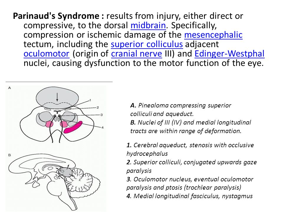 Parinaud s Syndrome : results from injury, either direct or compressive, to the dorsal midbrain.