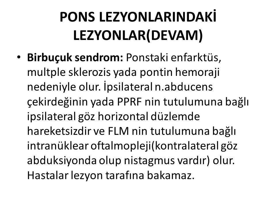 PONS LEZYONLARINDAKİ LEZYONLAR(DEVAM) Birbuçuk sendrom: Ponstaki enfarktüs, multple sklerozis yada pontin hemoraji nedeniyle olur.