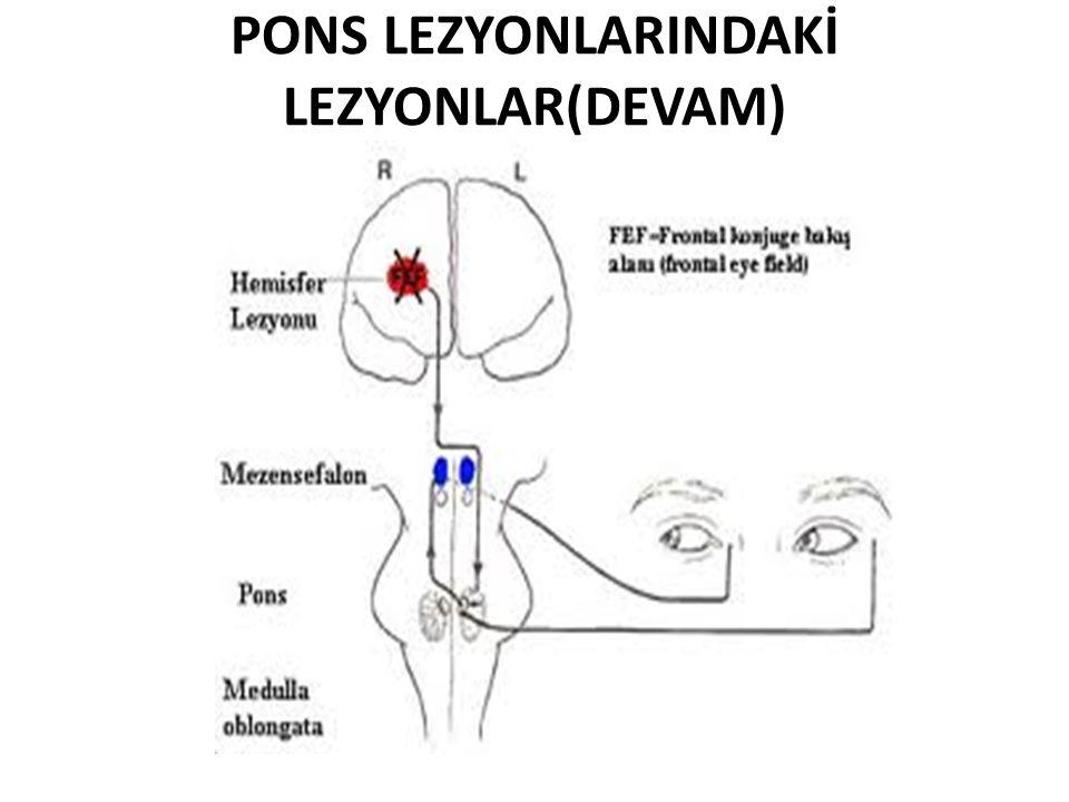 PONS LEZYONLARINDAKİ LEZYONLAR(DEVAM)