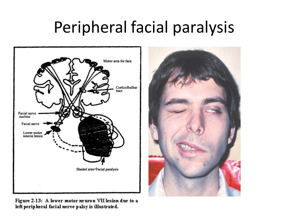 Peripheral facial paralysis