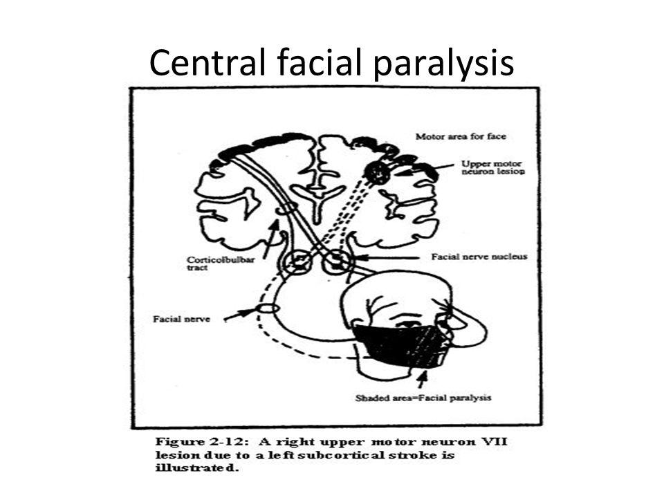 Central facial paralysis