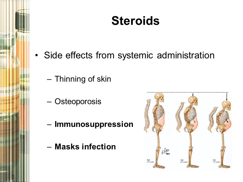Steroids Side effects from systemic administration –Thinning of skin –Osteoporosis –Immunosuppression –Masks infection